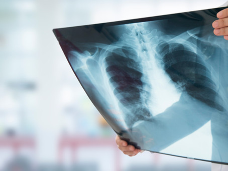 Tuberculose, como prevenir