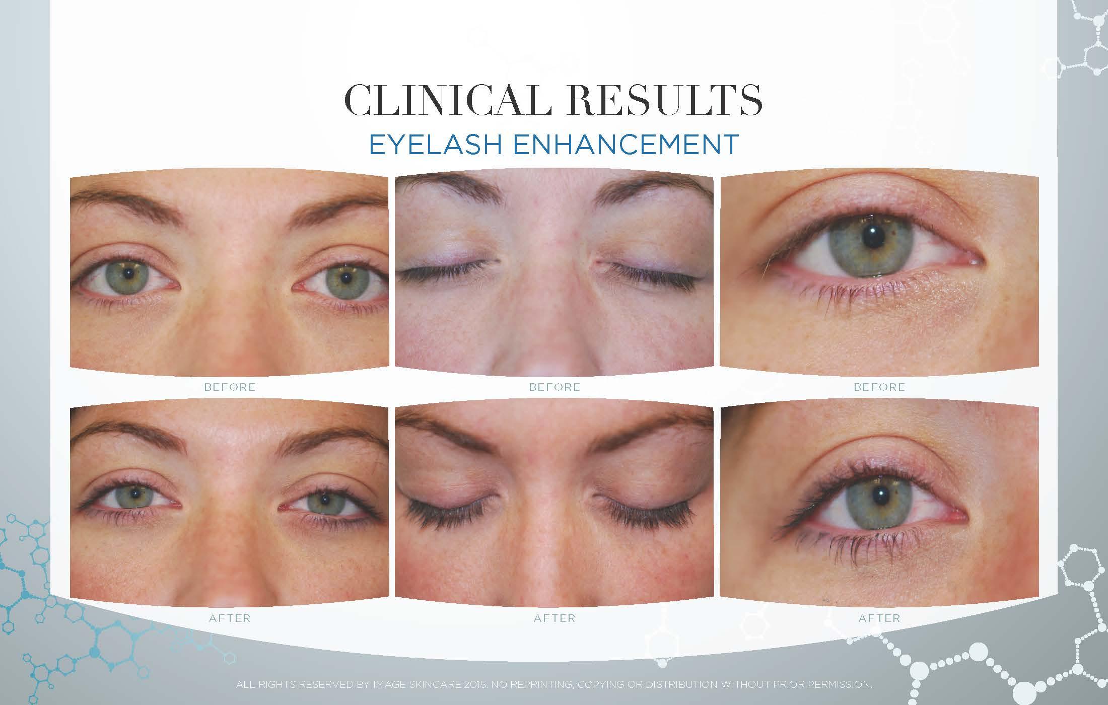 Eyelash Results
