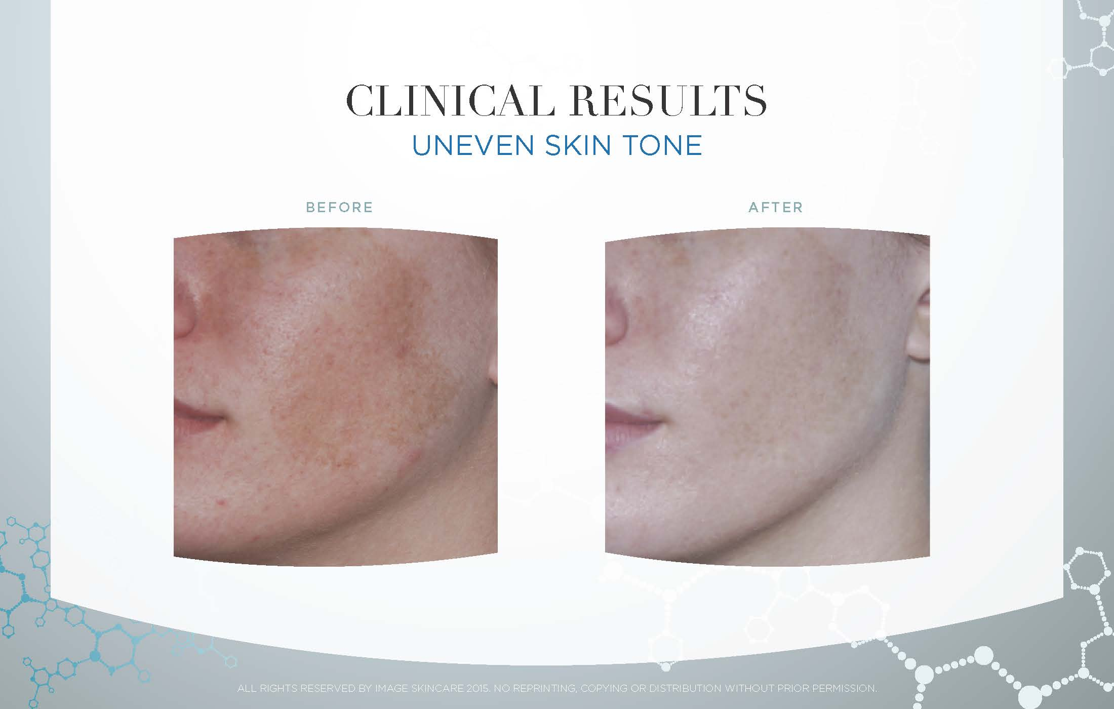 Uneven Skintone Results