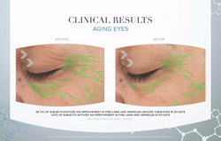 Aging Eyes Results