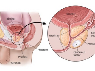 Prostate Diseases