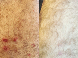 Happy Treated Patient who got rid of his skin rash three weeks after seeing me: I treated him for th