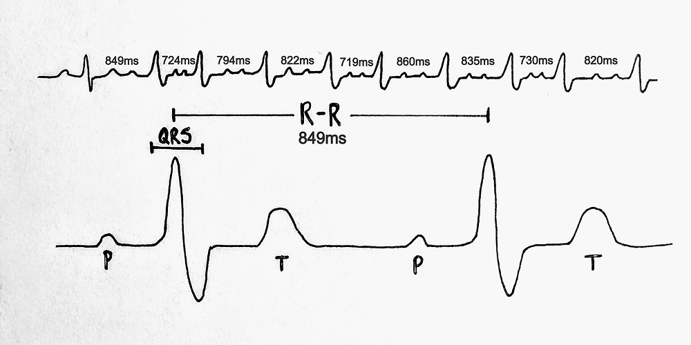 How to measure Heart Rate Variability or HRV