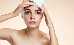 EVERYTHING you need to know about skin breakouts!