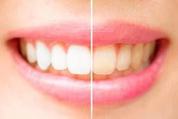 Discolouration of Teeth.