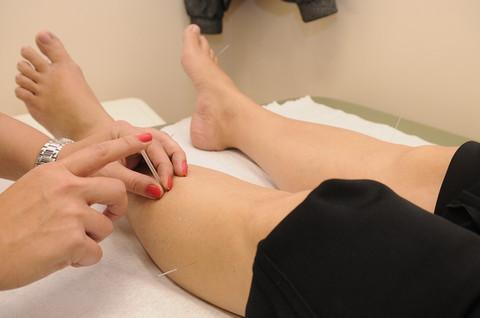 Acupuntura para tratar acne, olheira, ruga e estria!