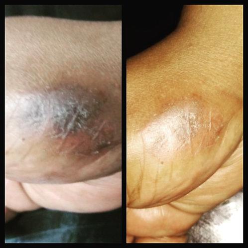 4oz. Organic Eczema Skin Therapy Balm
