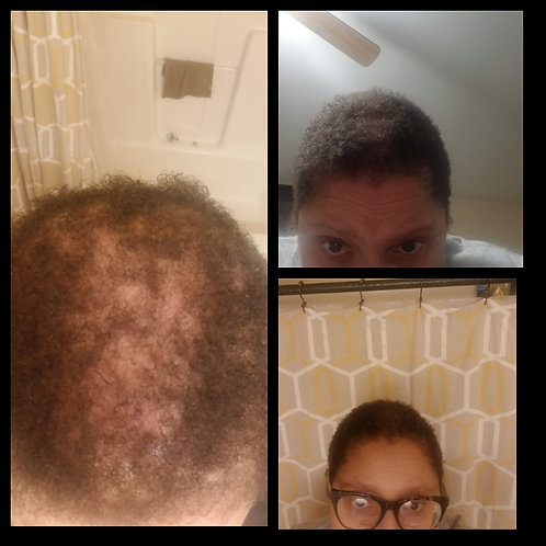 Restorative Hair Growth Trio