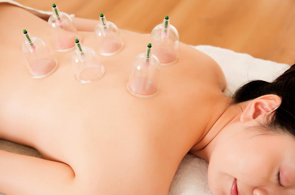 dos ventouses sèches à froid massage cupping Agathe Lapalut