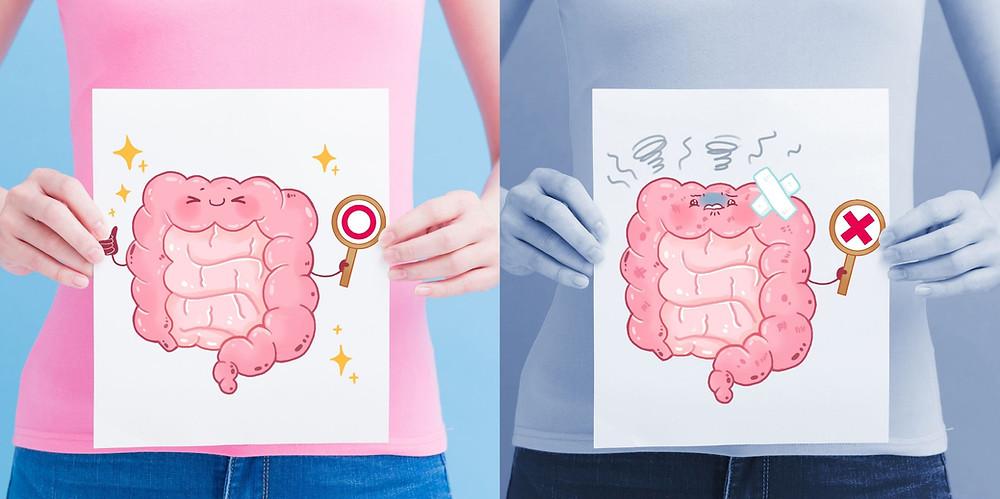 Intestin normal et intestin irritable