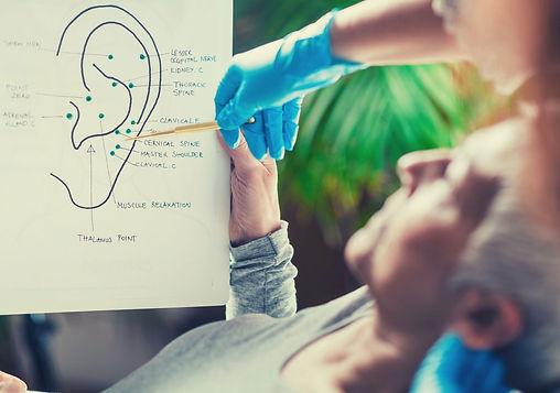 auriculothérapie.jpg