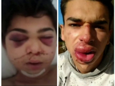 Roma Family Attacked by Police Officers in Hungary