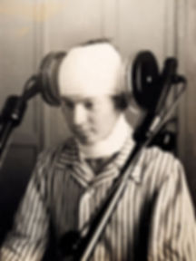 Patient Receiving Lateral Cerebral Diathermia, believed to be Morton Welles