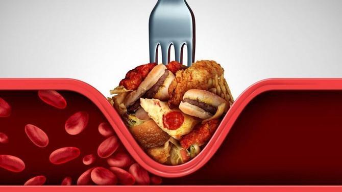 Colesterol elevado y como prevenirlo