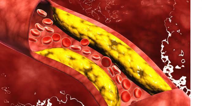 Colesterol elevado ¿Cómo prevenirlo?