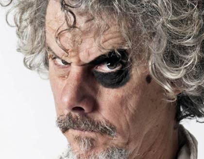 Comico di Zelig Paolo Migone occhio nero