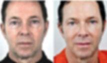 fraxel-thermage-wrinkles.jpg