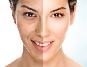 Photo Rejuvenation Facial - $135