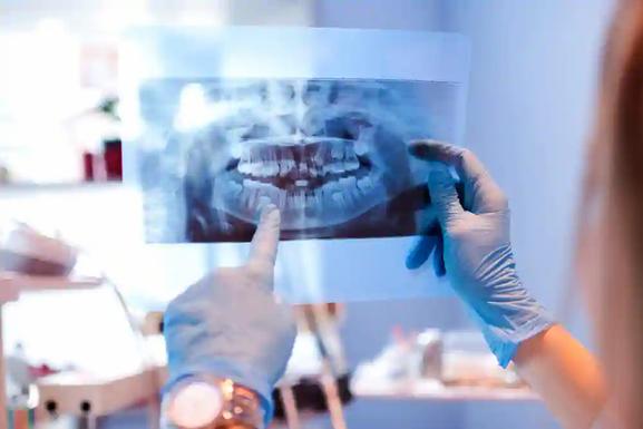 Dental OPG