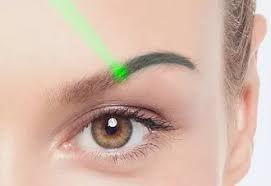 Odstránenie tetovania laserom
