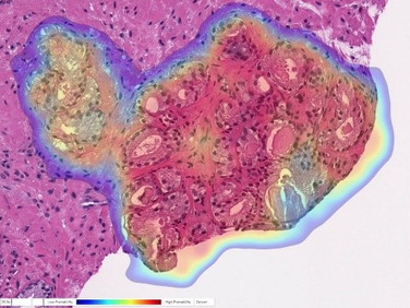 World's Most Accurate AI for Prostate Cancer Detection Unveiled by UPMC
