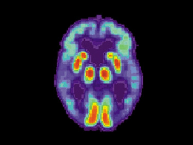 AI Can Use Speech and Handwriting to Assess Risk of Alzheimer's