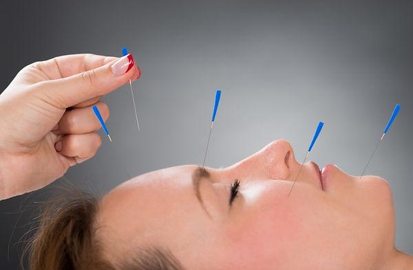 akupunktur-ignesi.jpg