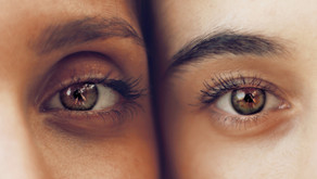 How to Finally Banish Those Dark Under-eye Circles