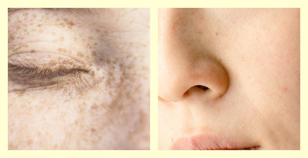 Une peau sensible et réactive d'accompagne de rougeurs, démangeaisons, tiraillements, inconforts, desquamations. Klask vous donne des solutions.