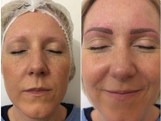 Facial Cosmetics
