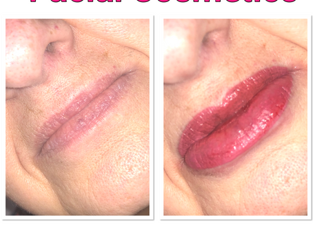 Beautiful Set of Lip Blush Lips 👄 Done today 👄👄👄👄👄👄👄👄👄👄👄👄👄👄👄 Before and After 👄👄👄
