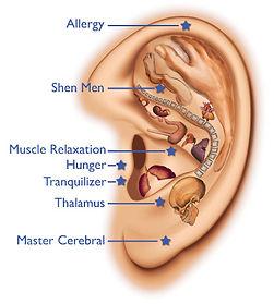 acupuncture-on-ear.jpg