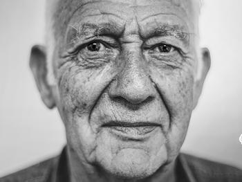 Síndromes demenciais reversíveis e doença de Alzheimer no idoso.