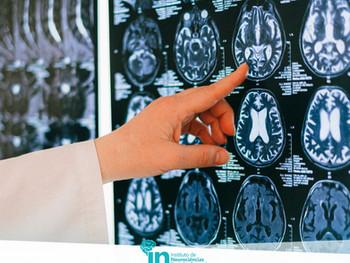 Benefícios (e efeitos colaterais) da Estimulação Magnética Transcraniana (EMT)