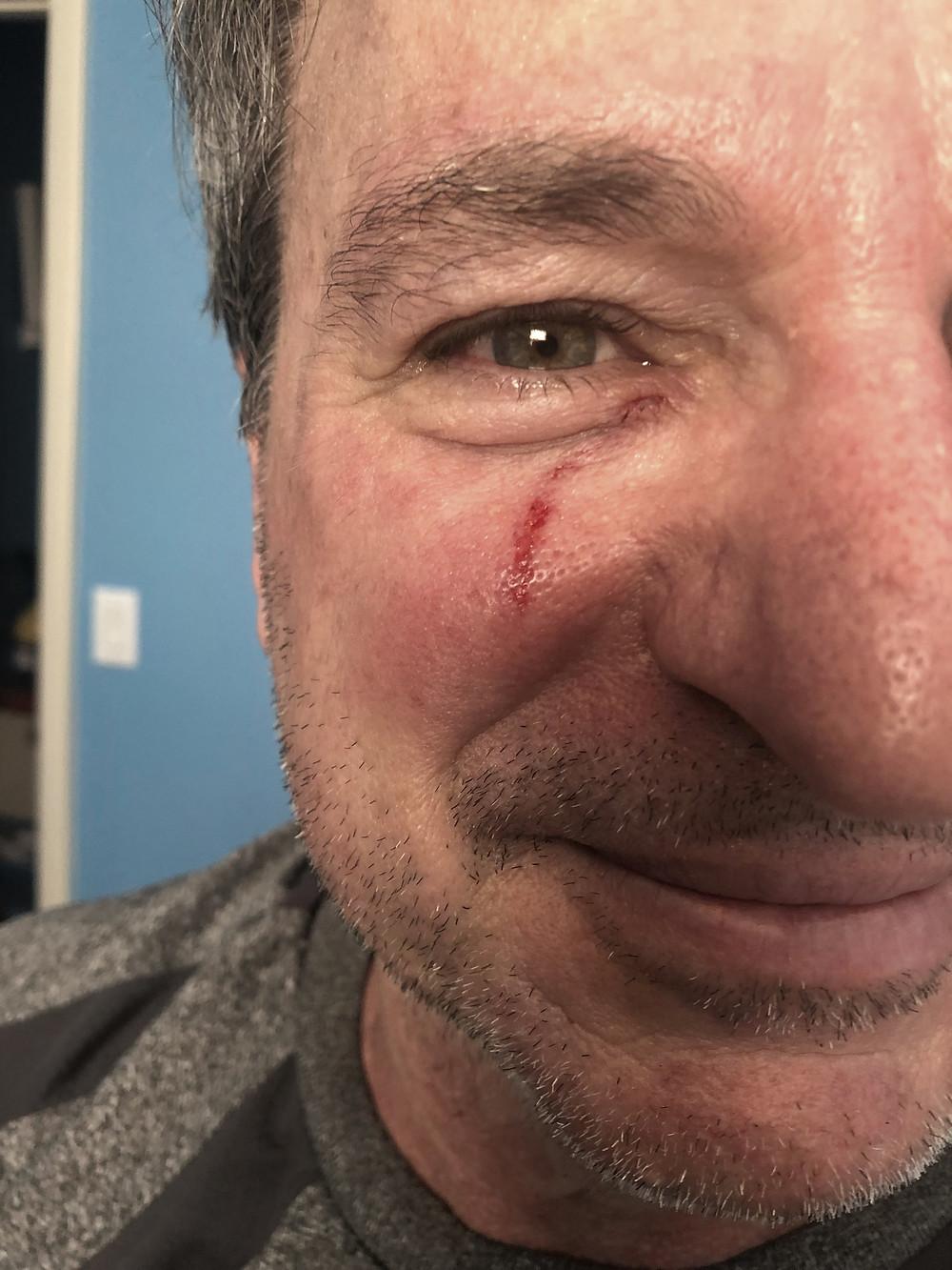 empty nester Brad with basketball injury