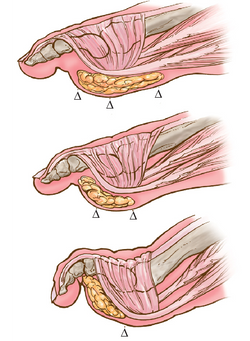 3-Development-of-claw-toe-deformity-As-the-flexor-muscles-of-the-foot-become-weakened.png