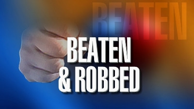 Man found on roadway injured tells KSP he was beaten and robbed