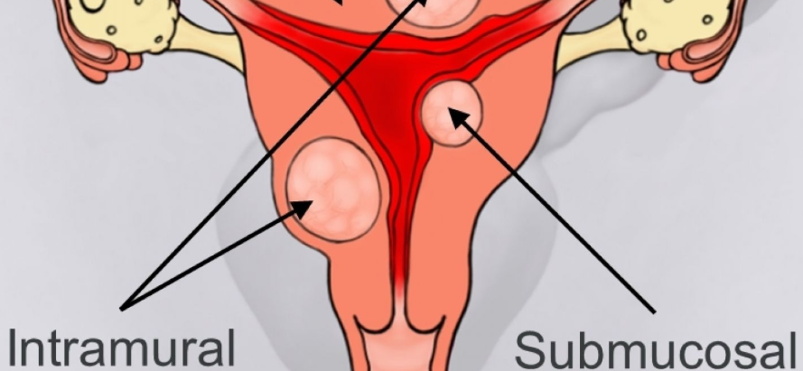 Why are Black women more likely to suffer from Fibroids?