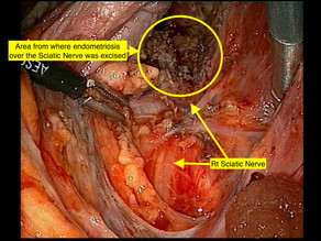 Endometriosis in and around the nerves – What can be done?