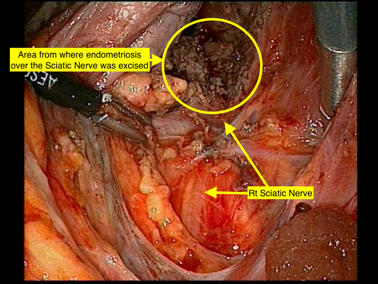 Fig 1. Right pelvic sidewall demonstrating Right Sciatic nerve and site where endometriosis was excised.
