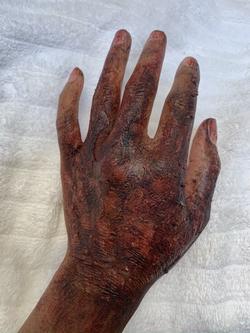 BURN HAND (FIRE/SMOKE)