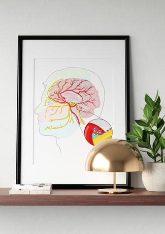 Trigeminal Neuralgia Illustration