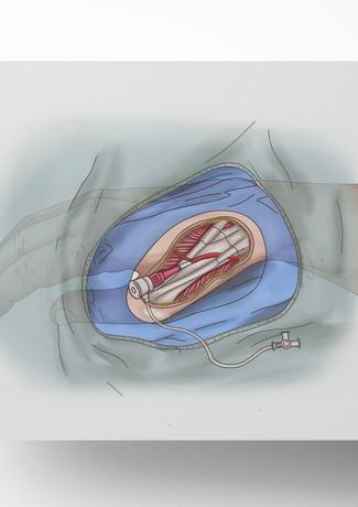 Radial Catheter Access