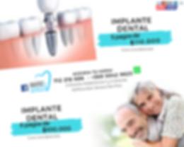 Promocion Convenio Cumbres Implantes.png