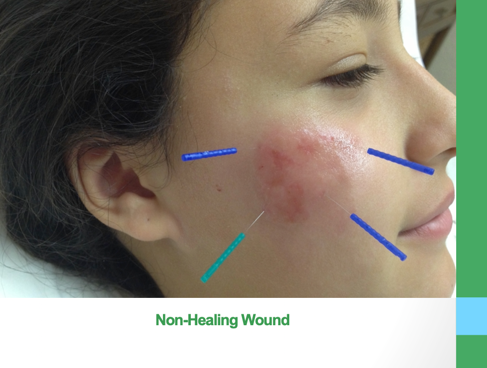 Non-Healing Wound.png
