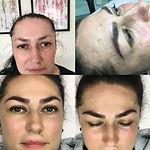 Microblading Treatments