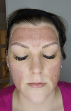 Skin tightening Services