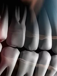 CBCT 3D X-ray