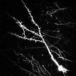 Adult-born granule cells