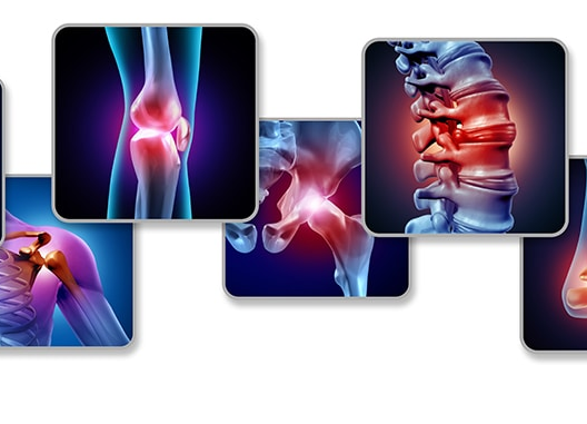 Joint and Arthritis Pain Remedies